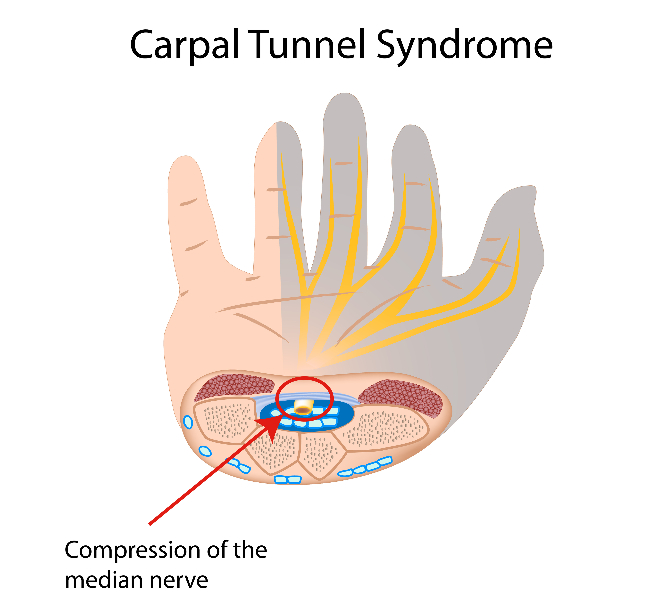 Carpal tunnel syndrome, eps10
